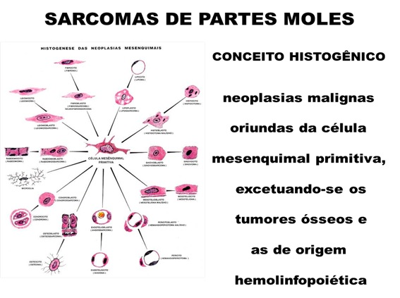 cancer de tip sarcoma)